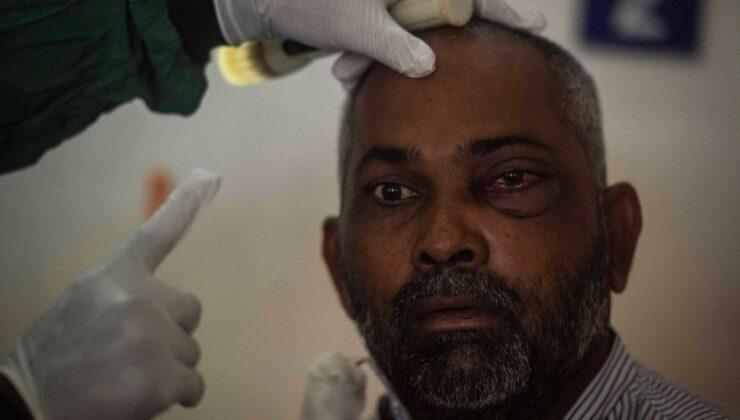 Kara Mantar hastalığı ve tedavi yöntemleri